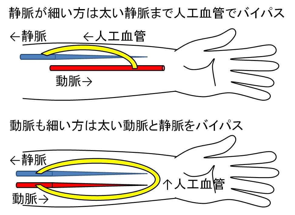 人工血管について